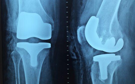 Ćwiczenia i rehabilitacja stawu kolanowego po endoprotezie